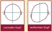 Abbildung by SimoNatal - Beispiel einer Kopfasymmetrie